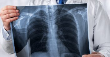 health & wellness 1119, lung cancer